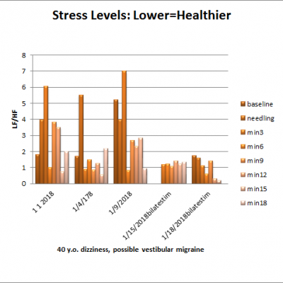 Acupuncture, Stress Levels (HRV), and Vestibular Migraine: El.Di. edition