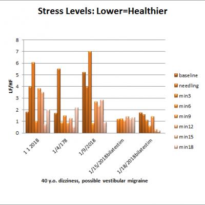 Acupuncture, Stress Levels (HRV), and Vestibular Migraine: El.Di. edition