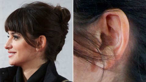 Penelope Cruz with Acupuncture Needles in Ear