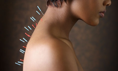 Acupuncture needles on Woman's Upper Back