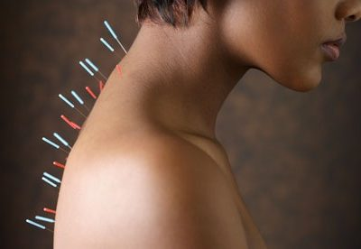 Brain Scans Show Real Effect of Acupuncture