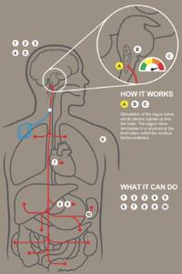 vagus nerve graphic