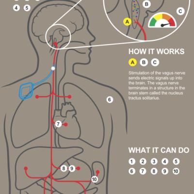 Vagal Nerve Stimulation in Coma Patient