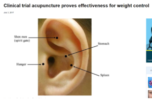 ear acupuncture points
